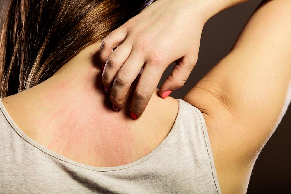 Side Effects: Skin Rash