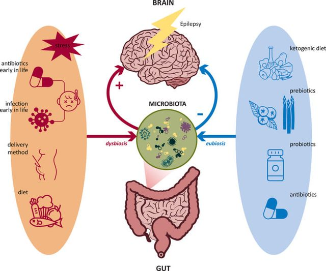 The gut microbiome in drug‐resistant epilepsy